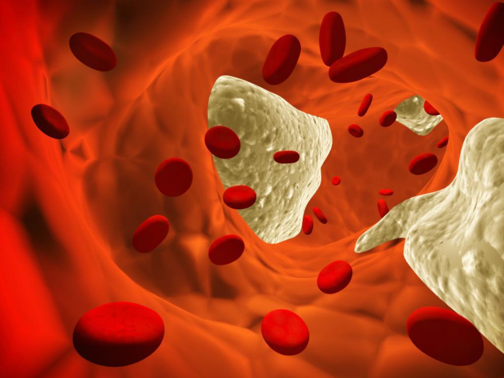Продукты, снижающие холестерин в крови и очищающие сосуды